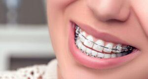 Diş teli nedir? Ne işe yarar