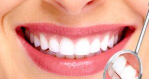 Kaplama diş ve çeşitleri
