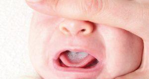 Bebeklerde Mantar Belirtileri ve Tedavisi