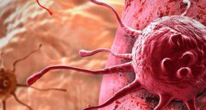Lenfoma ve Lenf Kanseri